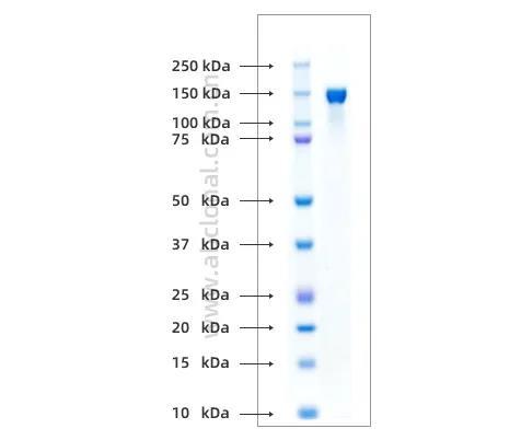 《研发速递:新型冠状病毒[SARS-CoV-2 (2019-nCoV)]抗原系列产品进展》