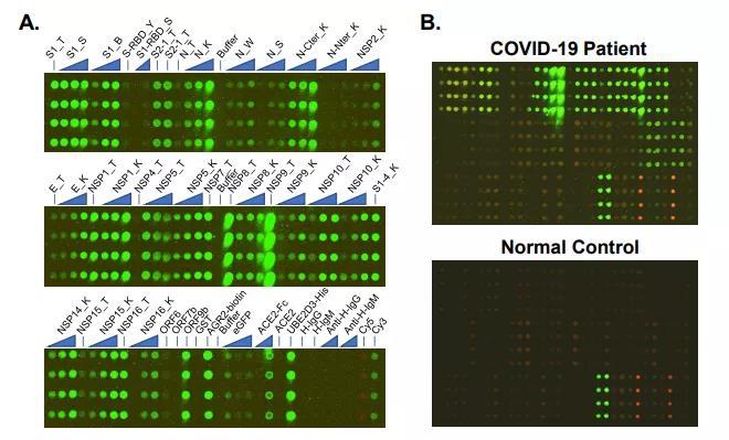 《直播 | 4月23日14点,看陶生策团队SARS-CoV-2蛋白芯片进行新冠病人康复期血清的IgG/IgM抗体响应的全局性分析》