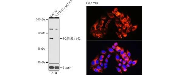 《ABclonal程序性细胞死亡系列(二)细胞自噬特征盘点及检测指南》
