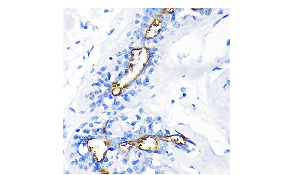 《ABclonal转化医学明星靶点巡礼——肿瘤微环境研究相关靶点MUC1》