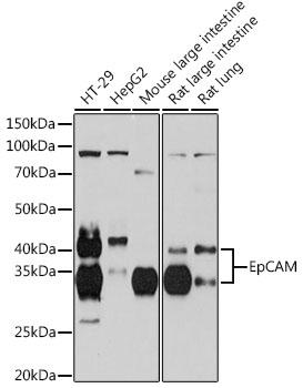 《ABclonal转化医学明星靶点巡礼——肿瘤微环境研究相关靶点EpCAM》
